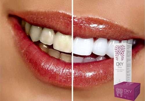 обеливание зубов препаратом Окси