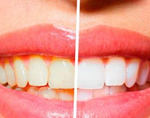 зубы дои после использования Окси
