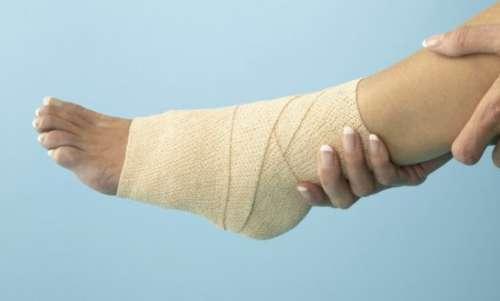 лечение подошвенной шпоры компрессами